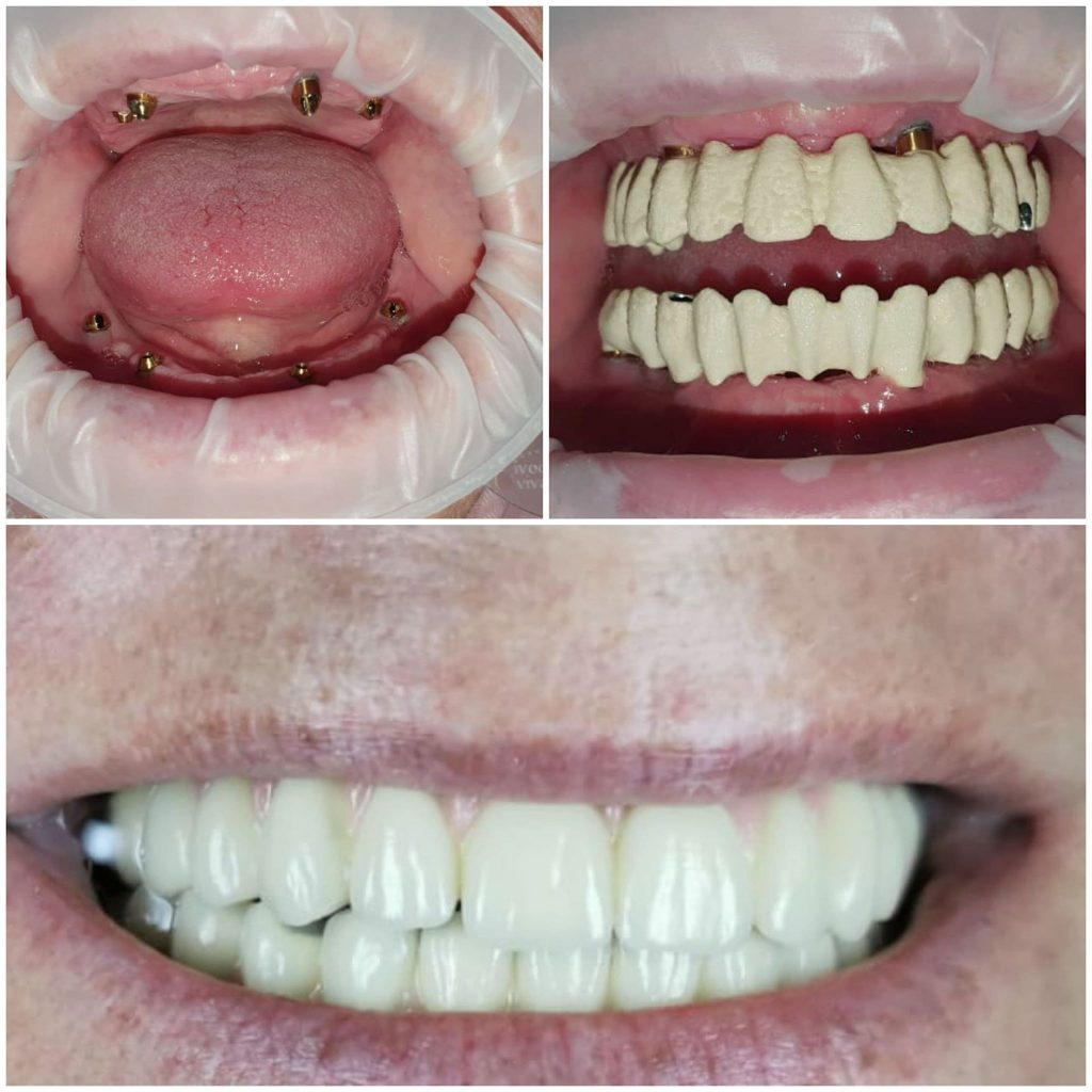 Reabilitare orala totala