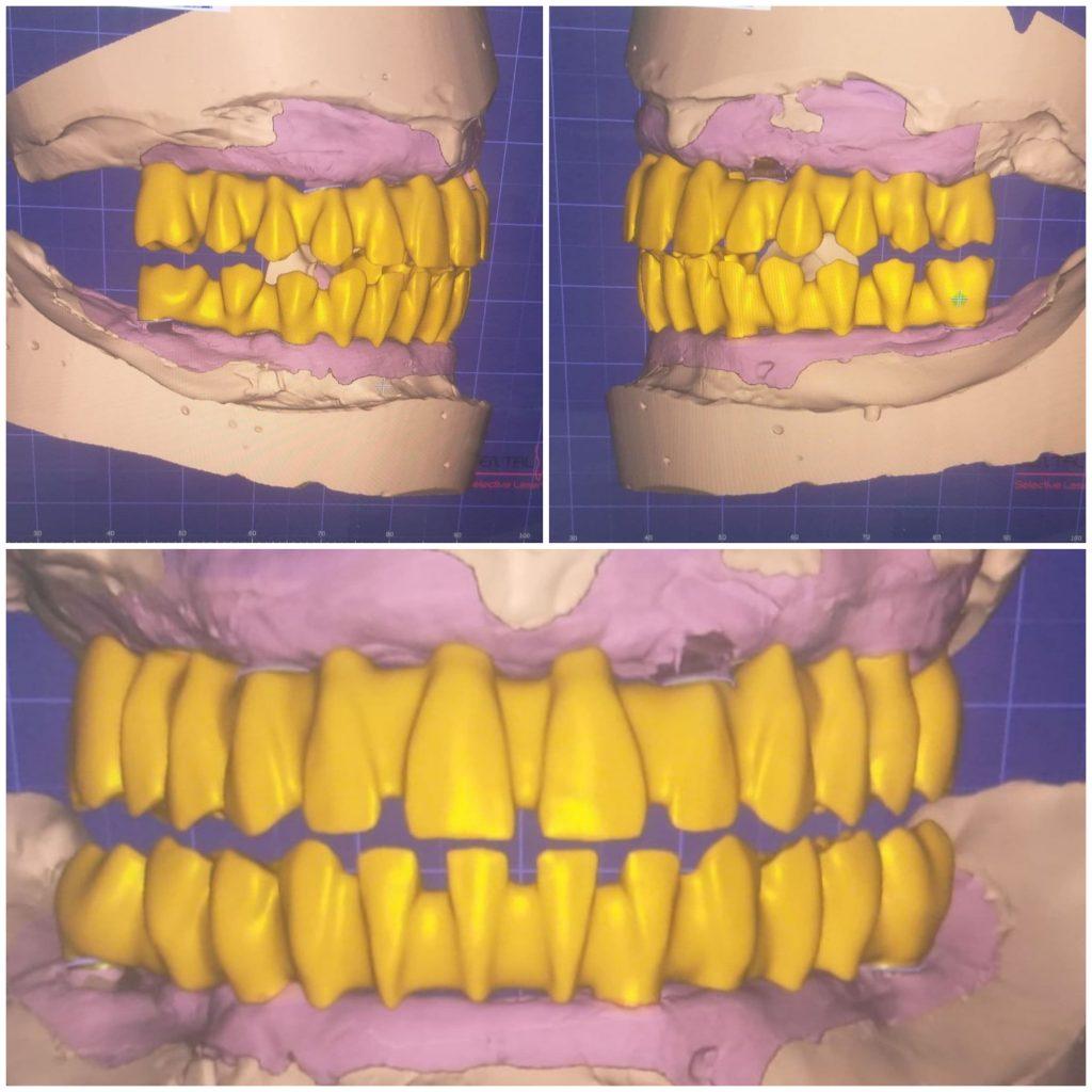 Fisier STL cu designul componentei metrice a viitoarei punți metalo-ceramice pe implant.