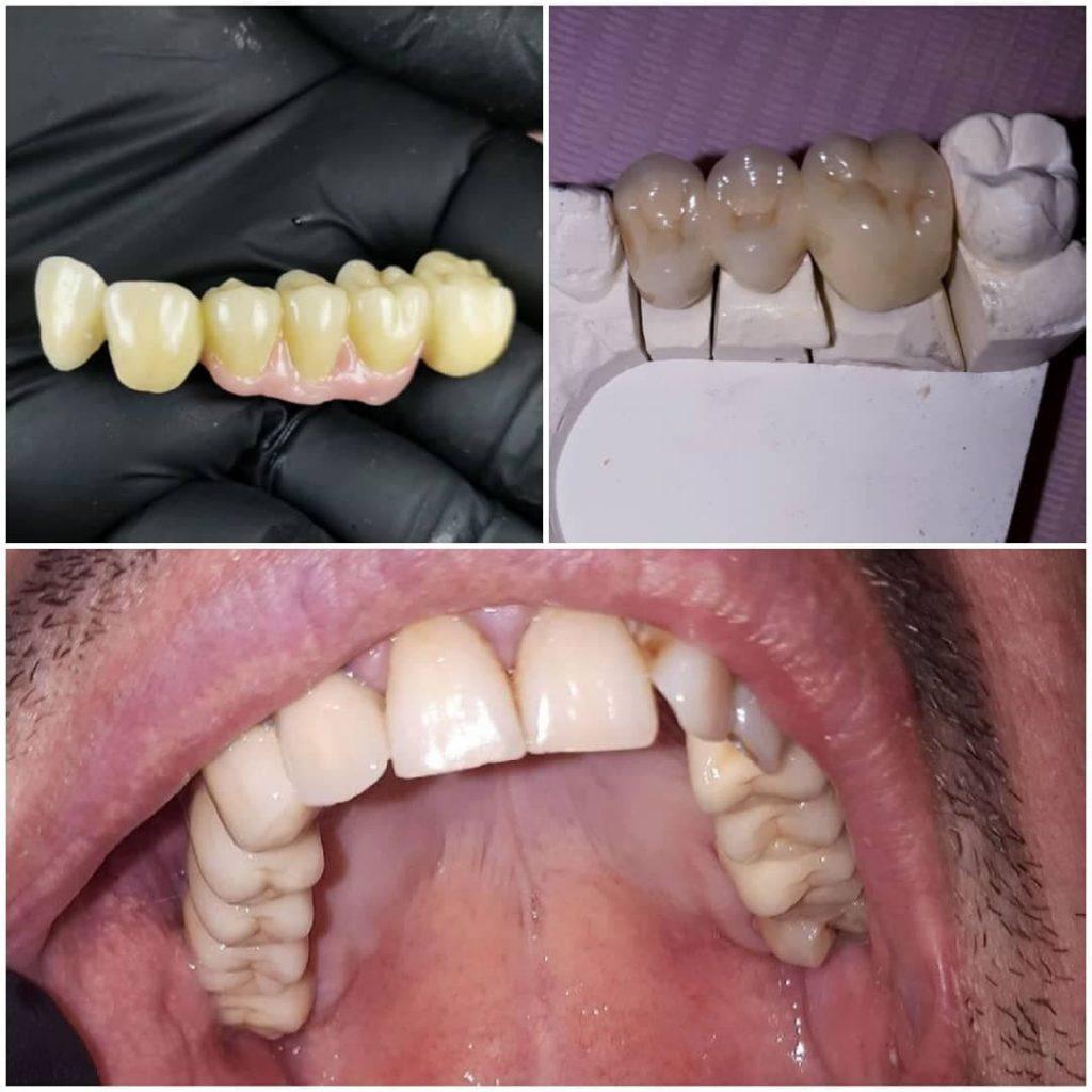 Reabilitare orala partiala