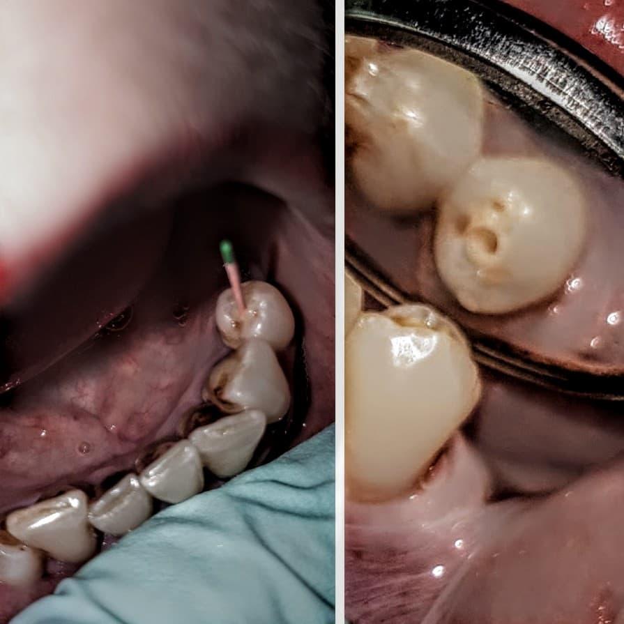 Devitalizare dentara
