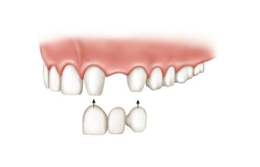 protetica dentara amonraent craiova